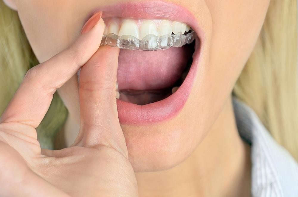 Woman with Invisalign | Lynwood CA