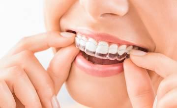 Invisalign | LA Orthodontics