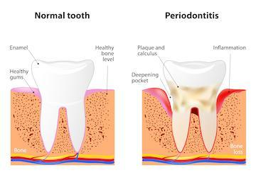 periodontal treatment lynwood ca
