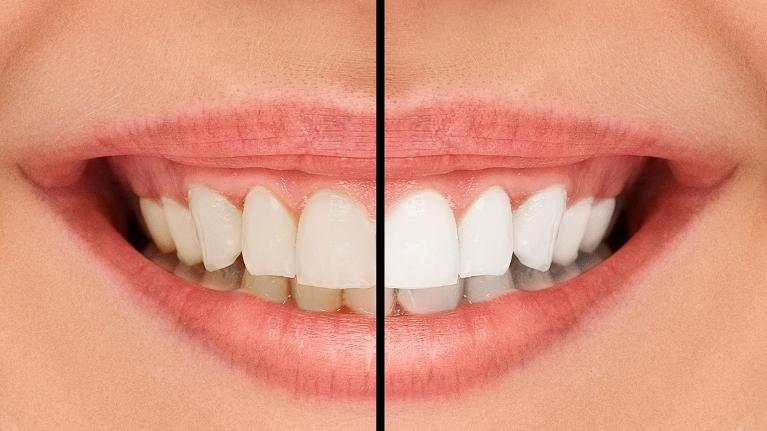 Big Smile | Teeth Whitening in Pico Rivera