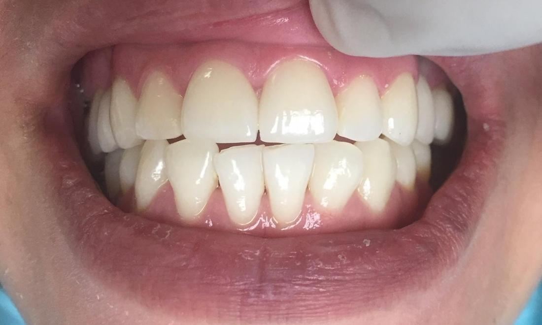 Dental Crown Results | LA Cosmetic Dentist