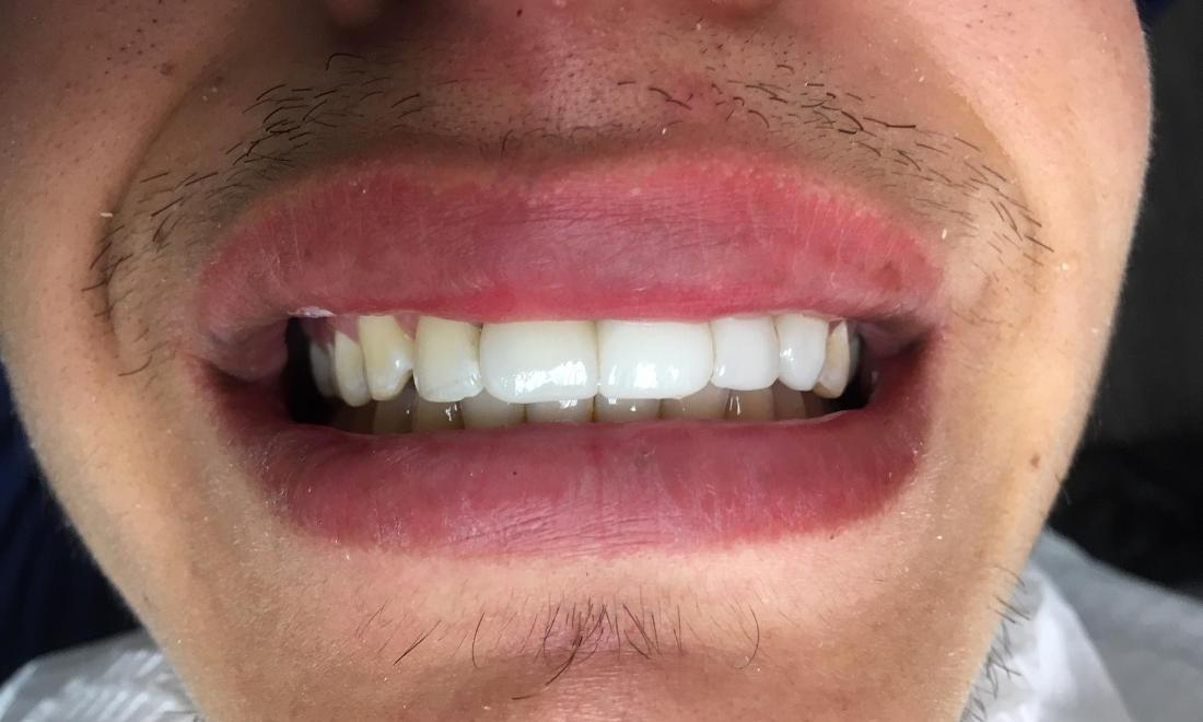 Fixed Bridge to Replace Missing Teeth | Lynwood CA