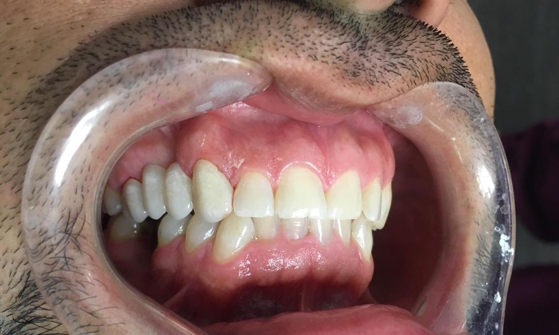 Dental Bridge Tooth Replacement in Los Angeles