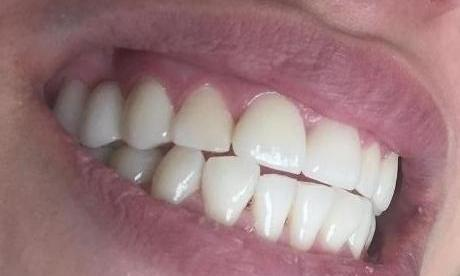 Patient with Dental Crowns | Dentist LA