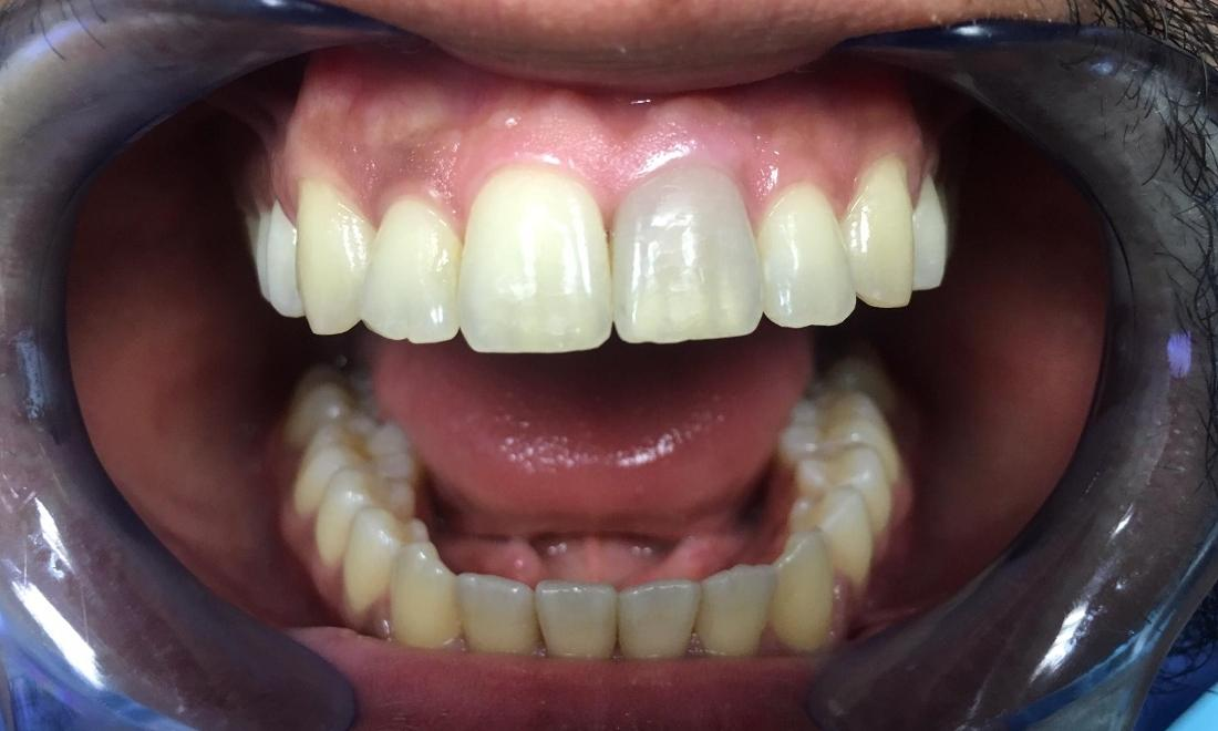 Patient with Discoloration | Teeth Whitening in Inglewood CA