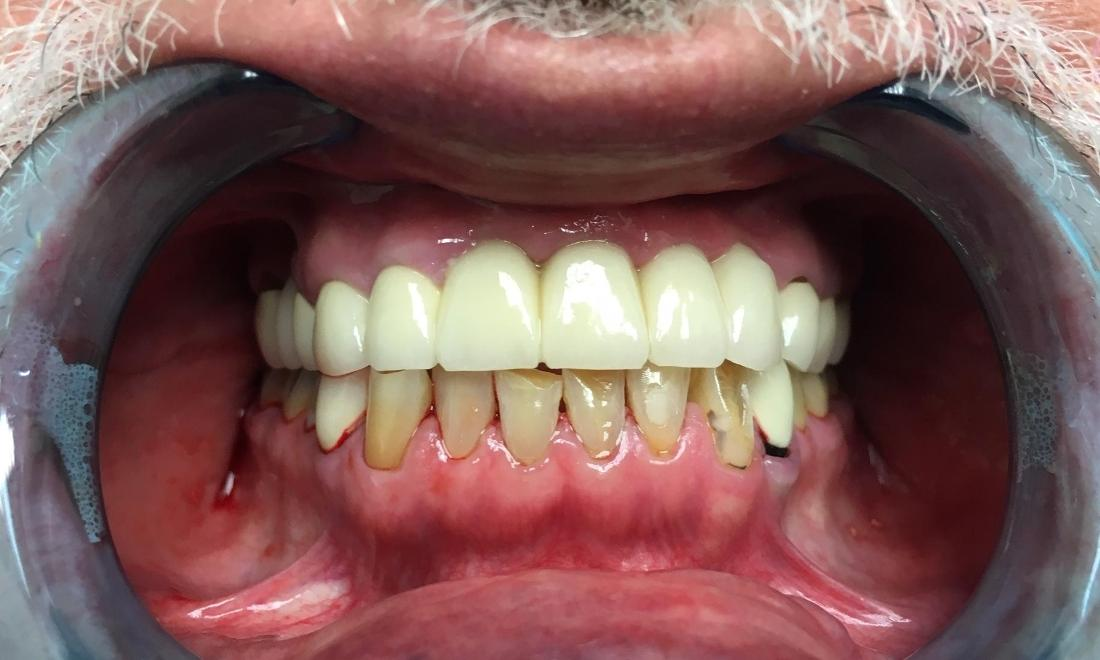 Dental Crowns Before and After Photo | Pico Rivera Dentist