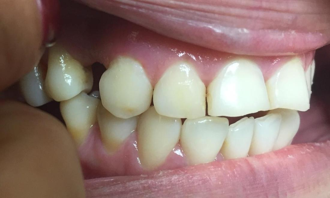 Dental Crown Before | LA Dentist